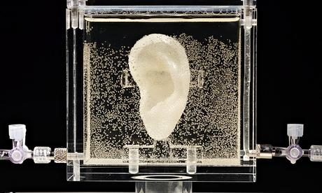 A orelha de Van Gogh feita a partir da cartilagem de um tetraneto de The Van Gogh.